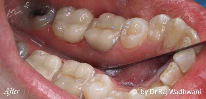 Cerec_Rosemary_After