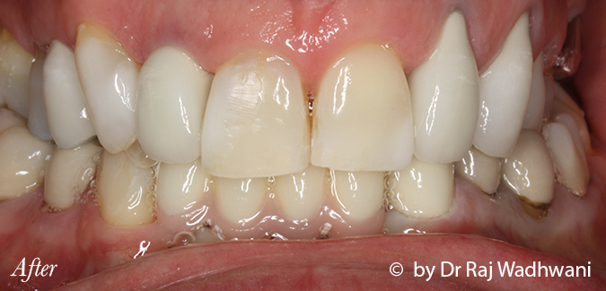 Whitening_Marc_After