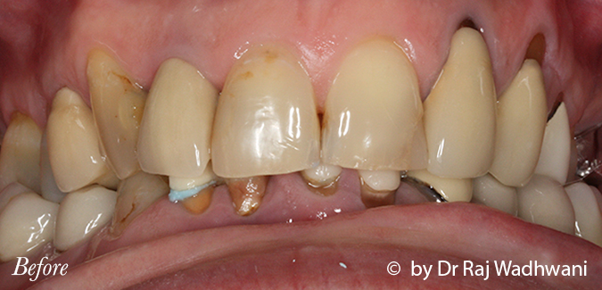Whitening_Marc_Before