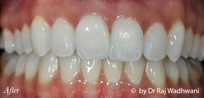 Whitening_Rak_After