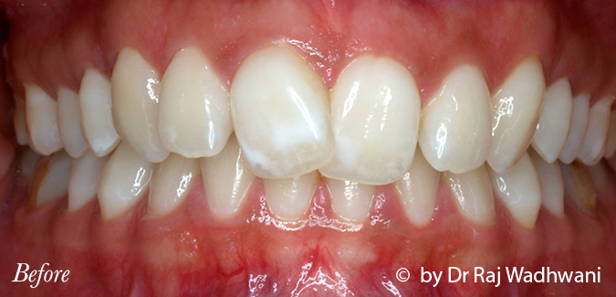 Whitening_Rak_Before