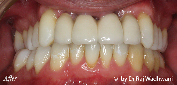 Whitening_Seb_After