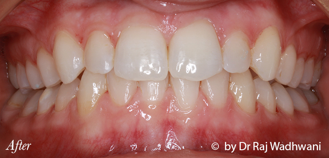 Whitening_Sophie_After