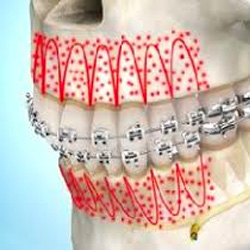 menu-accelerated-orthodontics