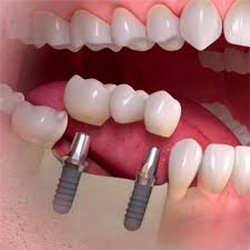 menu-dental-implant-bridge