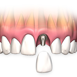 menu-dental-implant-single