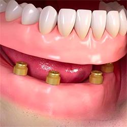 menu-implant-overdenture