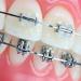 menu-orthodontics