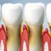 menu-periodontist